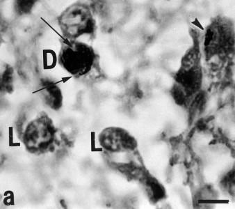 Tmavé (D) a světlé (L) pinealocyty v epifýze. Měřítko 1.5 µm